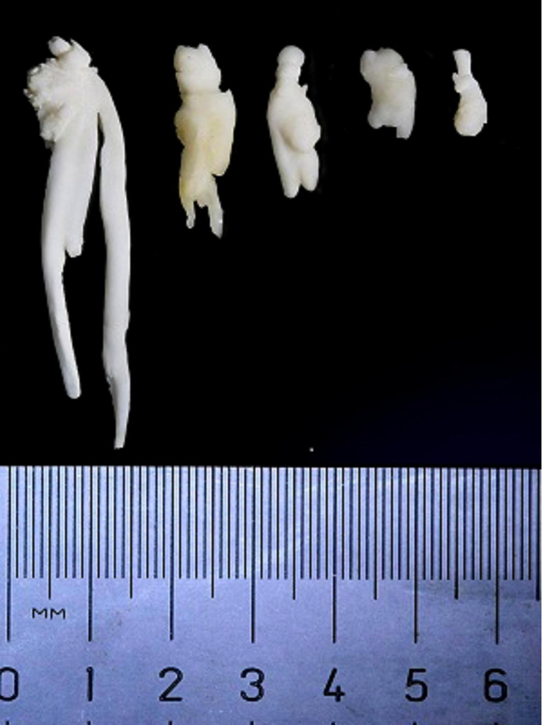 """Mysteries of evolution: the narwhal's """"tusk,"""" or rather, tooth ..."""