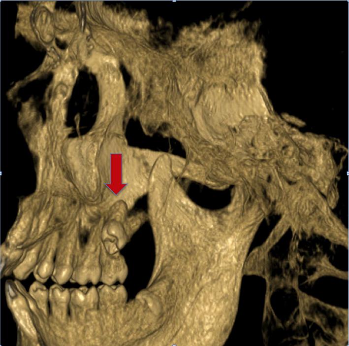 teeth aspen dental extraction wisdom