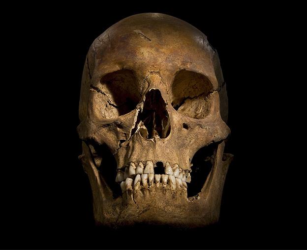 Richard III's skull, found last year beneath a Leicester car park (BBC).