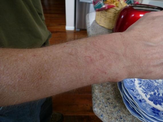 Ben Baihu scratches